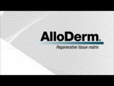 Alloderm Hernia Repair Patches have been used in hernia repair surgeries as well as breast reconsriction surgeries. If you or a loved one has suffered from complications from an AlloDerm Hernaia Repair Patch, you may be entitled to compensation.