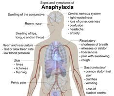 713px Signs and symptoms of anaphylaxis Overview of Anaphylactic Shock