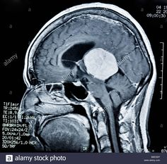 Normal Sagittal T2 Weighted Cervical Spine Mri Neck