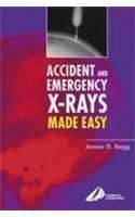 Accicent  Emergency X-Rays Made Easy International Edition  Price : $26.00 http://www.titaniumstores.com/Accicent-Emergency-X-Rays-International-Edition/dp/0443073252