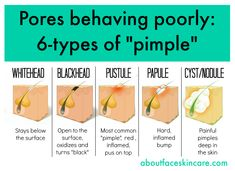 There are different types of pimples and The most beneficial treatment can depend on which type of pimple you are dealing with.