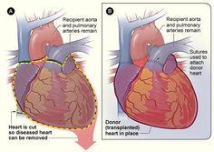 Illustration of heart transplant procedure