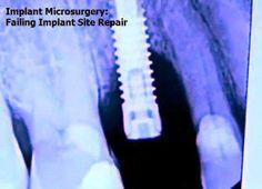 Implant Microsurgery: Failing Implant Site Repair | Odonto-TV