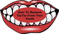 How To Remove TarTar From Your Teeth
