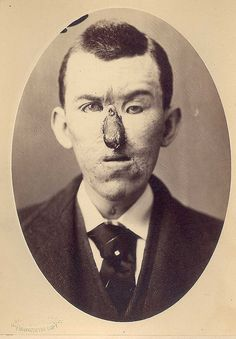 Rhinoplasty - Loss of nose due to an injury, and replacement by a finger in 1880. Surgery by Dr. E. Hart, photo by OG Mason, both of Bellevue Hospital, NY.