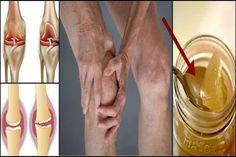 Vyliečte si kolená a zregenerujte si kosti s receptom ktorý udivil lekárov   Báječné Ženy