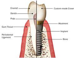 Dental Implants Sydney - Symplants