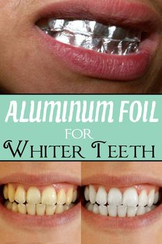 Diy teeth whitening for when my braces come off in a couple months aluminum foil for whiter teeth beauty hacksbeauty secretsdiy solutioingenieria Image collections