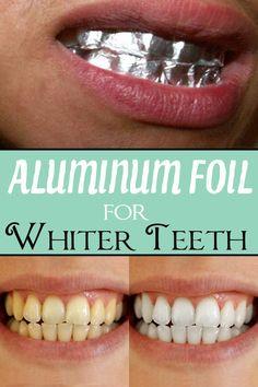 Aluminum foil for whiter teeth