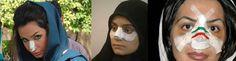 Point de vue sur le monde: L'Iran, le pays champion du monde en rhinoplastie!...