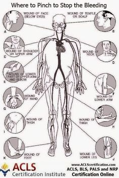 This diagram could save someone's life! #BLS #ACLS #emergency