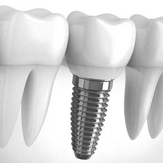 Dental implants in Delhi and Gurgaon by Nanda Dental Clinic which is famous for providing best dental implant treatment in Gurgaon & Delhi at affordable cost.