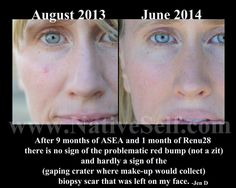 Independent Distributor, Feel Better, Health Care, Face, Faces, Facial, Health