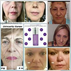 Skincerity Renew reduces the appearance of aging on the face and neck, smoothes the appearance of wrinkles, improves tone & texture....#skincerityrenew #nucerity #ziadiamonds #creatingbeautifullives #kidraiscreatingbeautifullives www.buynucerity.com/kidral97