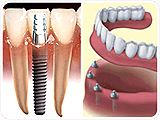 Dental implants are designed to provide a foundation for replacement teeth that look, feel, and function like natural teeth.