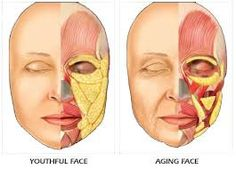 fat transfer to forehead Anatomy Face, Facial Anatomy, Anatomy Drawing, Botox Fillers, Dermal Fillers, Face Drawing Reference, Face Aesthetic, Facial Aesthetics, Fat Transfer