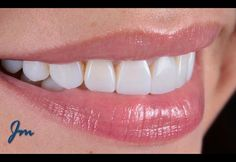 Termina el dia siempre con una Sonrisa. Diseño de Sonrisa Biomimético. #diseñodesonrisabiomimetico #esteticadental #smileday #smile #smiledesign #odontologiaestetica #composite #colombia #cartagena #cosmeticdentistry #madrid #champions #miami by johnnymercado Our Cosmetic Dentistry Page: http://www.myimagedental.com/services/cosmetic-dentistry/ Google My Business: https://plus.google.com/ImageDentalStockton/about Our Yelp Page: http://www.yelp.com/biz/image-dental-stockton-3 Our Facebook…