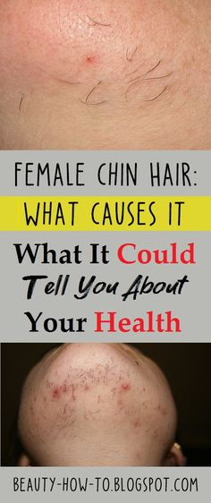 Female Chin Hair: What Causes It and What It Could Tell You About Your Health – Hair Removal Ideas Growing Facial Hair, Grow Hair, Hair On Chin Women, Female Facial Hair, Facial Hair Women, Chin Hair Removal, Mole Removal, How To Get Rid, How To Remove