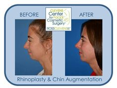 Rhinoplasty and chin implant by Dr. Ross Clevens. #nosejob #Clevens visit drclevens.com for additional photos