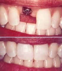 Multispeciality Dental Clinic in South Delhi, India. Best dentist in Delhi, #Dental #implants in india.. www.dentalimplantsclinicindia.com