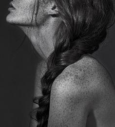 <3 freckles