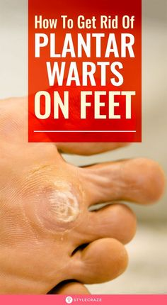 How To Get Rid Of Plantar Warts On Feet Naturally: There more than a hundred types of warts caused by the human papillomavirus (HPV), and each affects different individuals differently depending on their immunity and strength.If you are seeking a home rem Planter Warts Remedies, Home Remedies For Warts, Warts Remedy, Cold Home Remedies, Foot Warts, Warts On Hands, Warts On Face, Doterra, Planters Wart