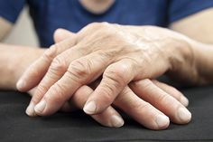 With migratory rheumatoid arthritis, pain and inflammation moves from joint to joint. Early treatment is the only way to prevent migration to another joint.