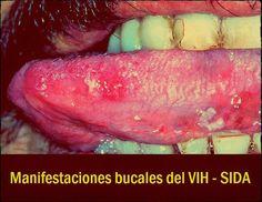 Manifestaciones bucales del VIH - SIDA | OVI Dental