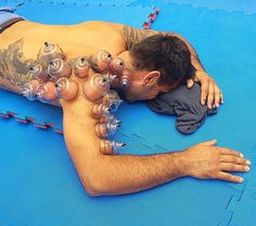 Chinese cupping therapy for shoulder pain