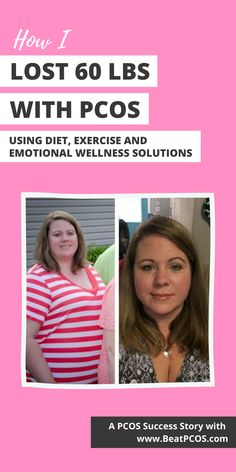 PCOS success stories weight loss | How to lose weight with PCOS I PCOS weightloss I PCOS weight loss before and after I PCOS weight loss plan I PCOS weight loss diet I PCOS weight loss I PCOS diet I PCOS diet plan I PCOS recipes | PCOS treatment | PCOS success story | treatment for PCOS | best diet for PCOS weight loss | PCOS diet plan for weight loss | polycystic ovaries diet Best Diet For Pcos, Pcos Diet Plan, Weight Loss Diet Plan, Lose Weight, Foods To Boost Fertility, Treatment For Pcos, Fertility Problems, Yoga 1, Polycystic Ovarian Syndrome