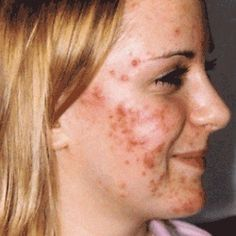 Acne is a BIG problem, but it can be treated - simple home remedies