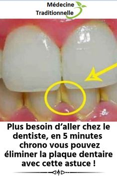 Plus besoin d'aller chez le dentiste, en 5 minutes chrono vous pouvez éliminer la plaque dentaire avec cette astuce !
