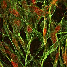 Brain protein in cancer research, fluorescence deconvolution micrograph. Fluorescent dyes have been used to highlight cellular structures and proteins: actin (green), ubiquitin (red).