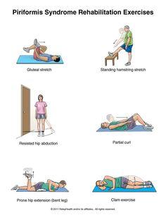 Piriformis syndrome rehab exercises.
