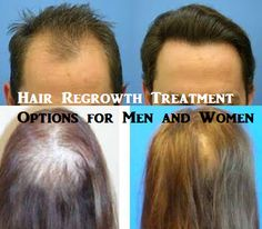 Hair Regrowth Treatment and Home Remedies