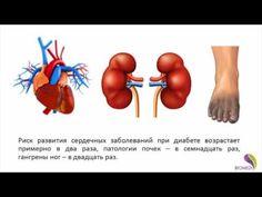 Биорезонансная коррекция  Сахарный диабет