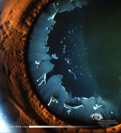 Name: Angela Chappell, CRA Description: #Ophthalmology #OphthalmicPhotography #Slitlamp – Pseudo exfoliation of the lens