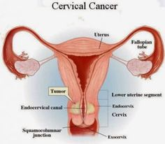 To know the causes of cervical cancer , you have to learn about some things that relate it. Cervical cancer begins in your cells lining the cervix, which is in your lower part of the womb