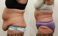 As 15 Maneiras de Perder Gordura da Barriga