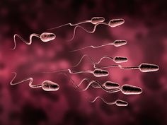Infertility in Men Tied to Heart Disease, Chronic Conditions | Medscape