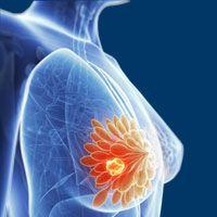 Breast Density Surpasses Other Risk Factors in Development of Breast Cancer
