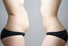 Looking for how to get a flat and sexy stomach? These 7 Best Lower Belly Fat-Burning Exercises will help you get fast results because they are just what you need. Lower Belly Fat, Burn Belly Fat, Lose Belly, Diástase Abdominal, Flat Belly Overnight, Vaser Lipo, Skinny Fat, Skinny Stomach, Lose Weight