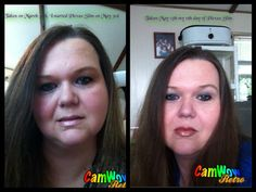Susan Hendry Hinson shares her before and after photo.  Can you see the difference in her face?
