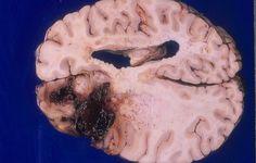 膠細胞腫(膠芽腫)マクロ像 Neurology, Camembert Cheese, Neuroscience