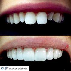 #Repost @raghedbashour with @repostapp. Minimum invasive veneers case done in two visits.. #mydubai #mydubailife #dental #dentist #dentista #dentistrymyworld #kuwait #qatar #ksa #suadi #odonto #odontologia #insta #instapic #instagood #instamood #instalike #instafollow #uae #teeth #HollywoodSmile #veneers #smile by dentist_world_1 Our Dental Veneers Page: http://www.lagunavistadental.com/services/cosmetic-dentistry/veneers/ Other Cosmetic Dentistry services we offer…