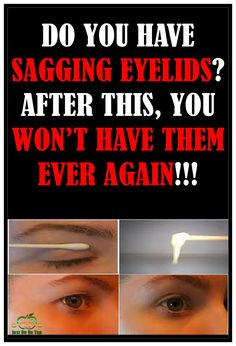 As time passes, the eyelids become sagging. However, besides time, there are many other factors that cause this. Sagging eyelids can become worse over time, they can stay unaltered, or they can simply come and go.