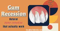 Gum Health, Oral Health, Dental Health, Health Tips, Infected Tooth Remedies, Reverse Receding Gums, Receeding Gums, Swollen Gum