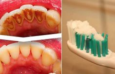 If you're wondering how to get rid of tartar inexpensively and at home, you are definitely not alone. Not only is tartar visually displeasing, but it also increases your risk of developing oral diseases. Tartar build up can have adverse effects on your health as well as how you feel about your appearance.