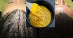 Quivo Noticias ☛ Con solo estos 3 ingredientes dejarás de tener miedo a la calvicie, de hecho, tu cabello crecerá más de lo que alguna vez lo hizo, todo te parecerá un milagro.