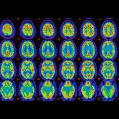 Study: Early Alzheimer's Clues Appear In The Brain's Internal GPS - Forbes